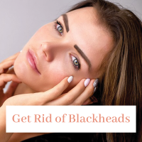 how-to-get-rid-of-blackheads